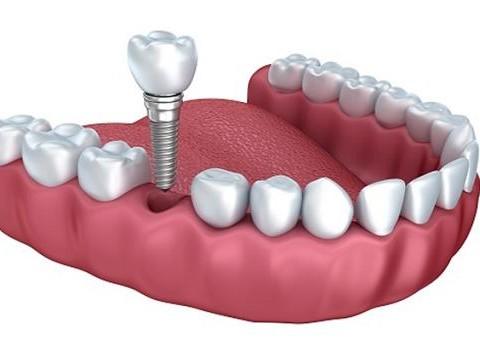 Trồng răng Implant – Công nghệ đột phá của ngành nha khoa