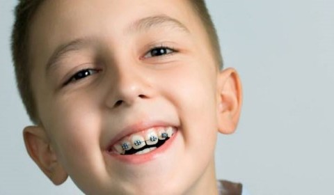 Niềng răng ở độ tuổi nào là thích hợp?