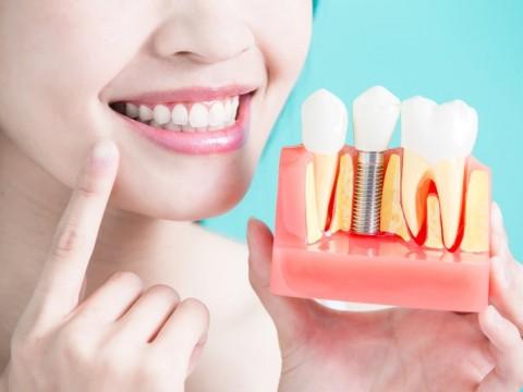 Hướng dẫn chăm sóc sau khi trồng răng Implant