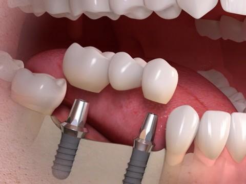 Sau Khi Nhổ Răng Có Cấy Ghép Implant Ngay Được Không?